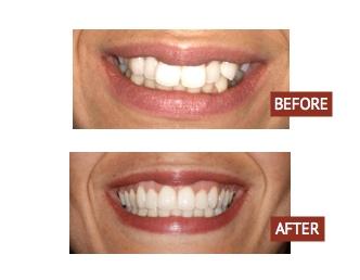 Orthodontics Dental Speaking